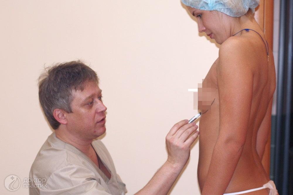 увеличение груди 4 размер фото